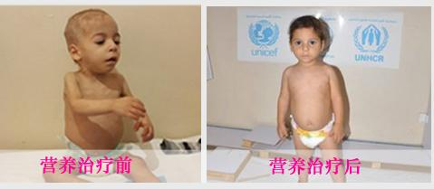 Child's life changed by UNICEF.